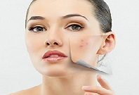 Outer Peace Acne Relief